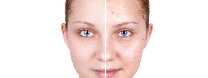 acne-behandeling