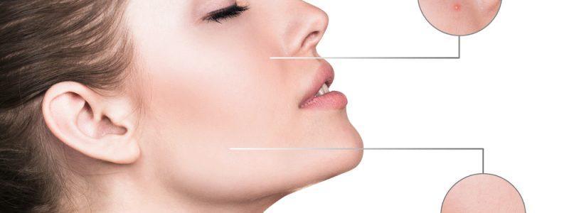 behandeling-voor-huid-uit-balans-2