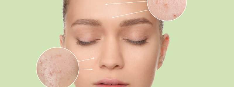 acne-foto